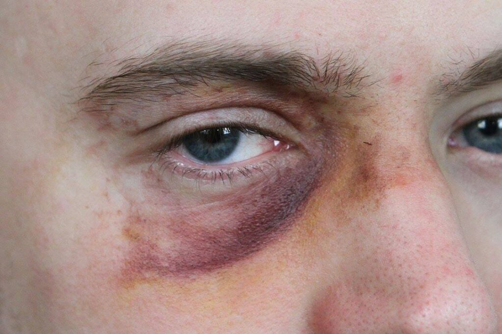 How to care for a black eye