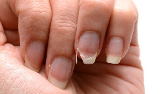 How to handle a chipped fingernail